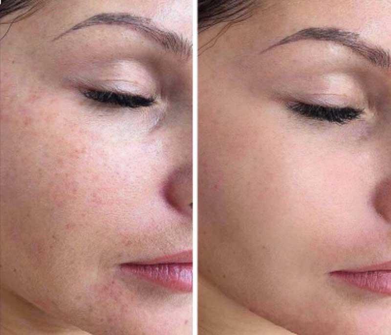 antes e depois microagulhamento