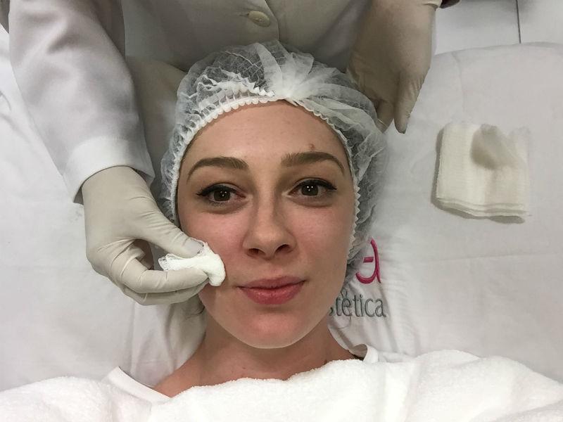 como é fazer o tratamento microagulhamento limpeza da pele