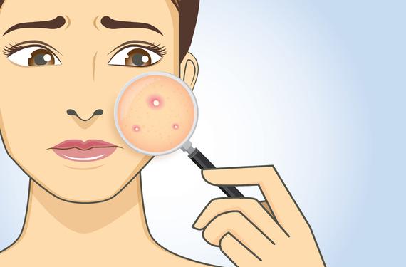celular-causa-mais-acnes-e-espinhas