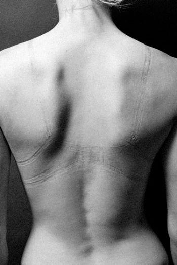 ensaio-chocante-reflete-sobre-o-que-fazemos-com-o-corpo-em-nome-da-beleza-1