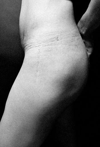 ensaio-chocante-reflete-sobre-o-que-fazemos-com-o-corpo-em-nome-da-beleza-2