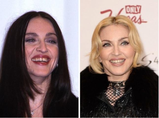 madonna dentes