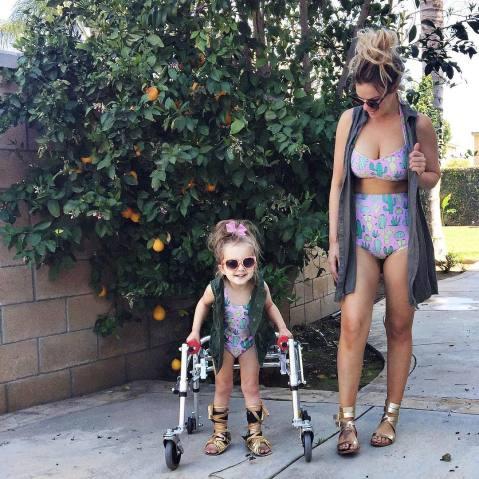 menina com paralisia cerebral é ícone de estilo 2