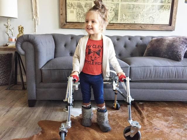menina com paralisia cerebral é ícone de estilo 8