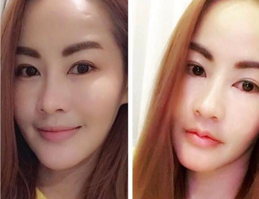 redução dos lábios antes e depois