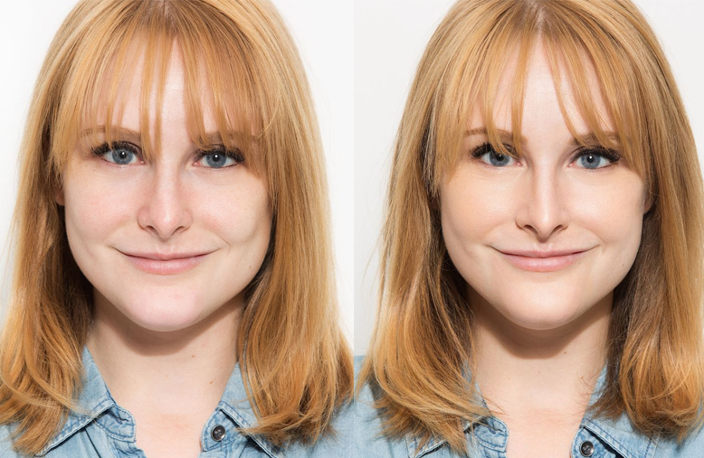 antes e depois base 1
