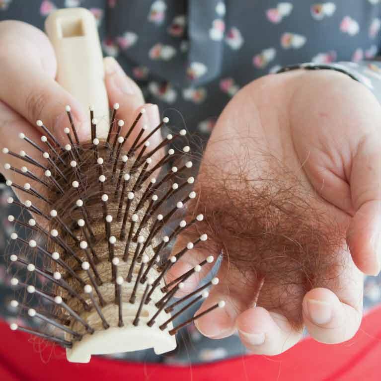 queda-de-cabelo-feminino