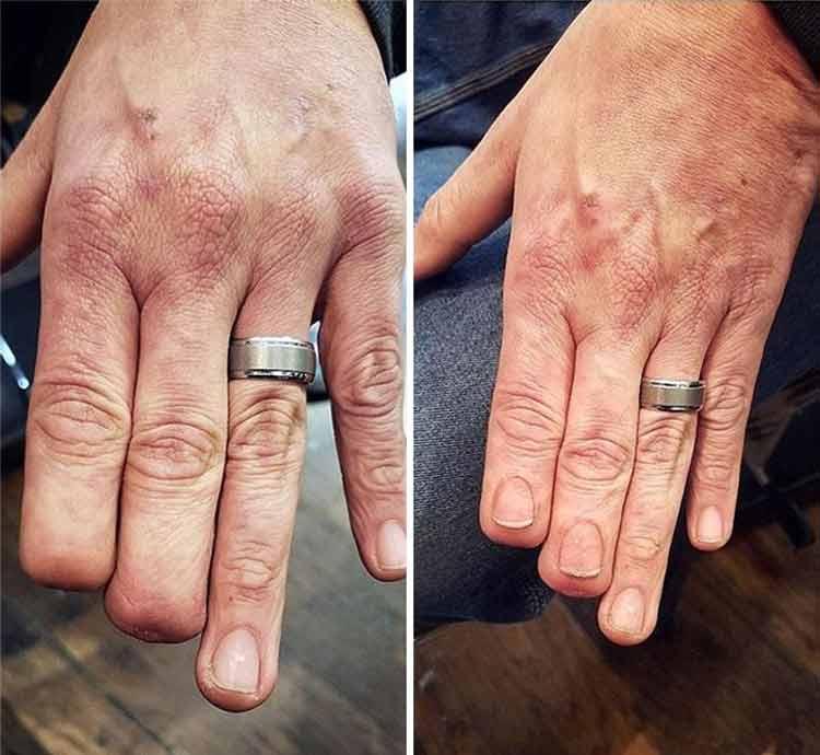 tatuagem-para-cobrir-imperfeições-2