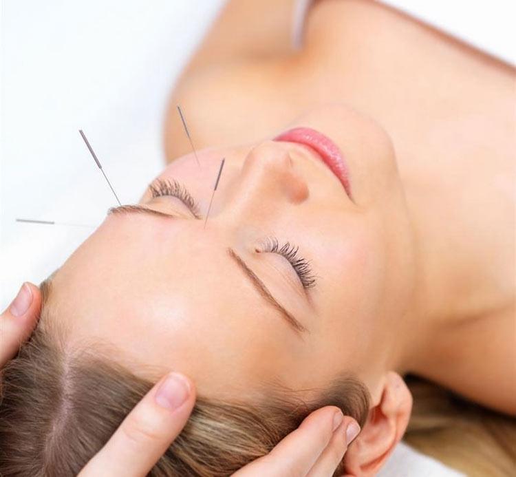 acupuntura-para-remover-rugas