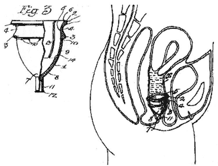 copo-menstrual-inventado-por-mulher