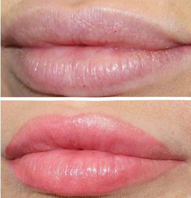 Blushing-Lip