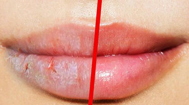 labios-rachados-como-curar