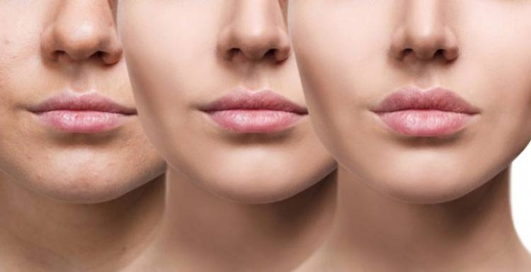 radiofrequencia-facial-beneficios