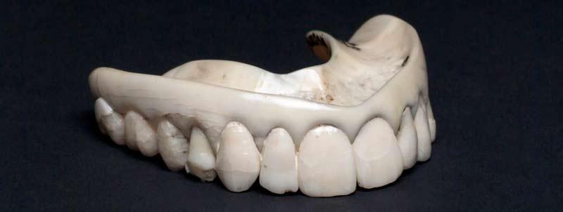 dentes-brancos-idade-media
