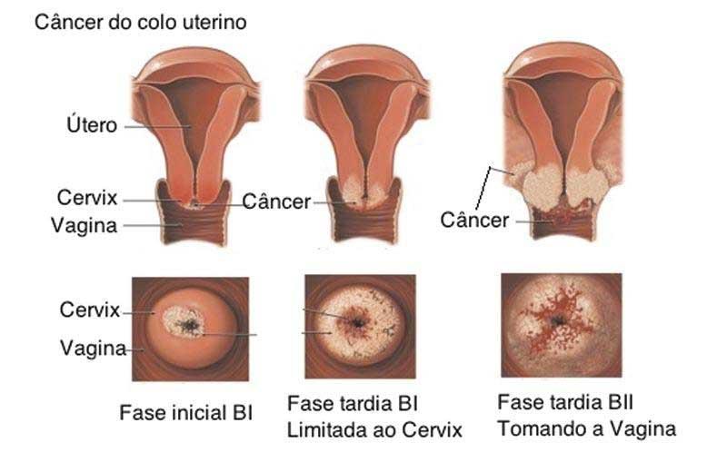 Câncer-do-colo-do-útero