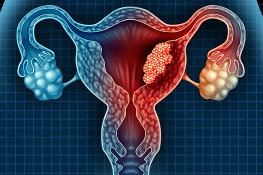Câncer-do-endométrio