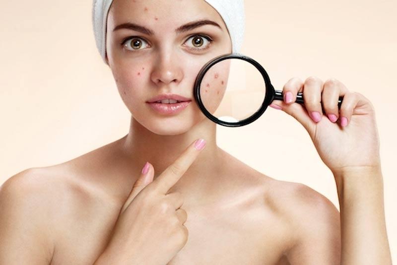 Síndrome-dos-ovários-policísticos-acne-anticoncepcionais-tratamentos-acne-hormonal-acne-adulta