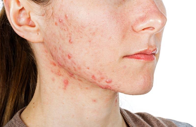 Síndrome-dos-ovários-policísticos-acne-hormonal-adulta