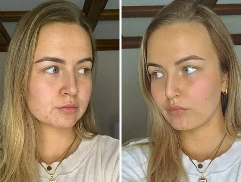 filterdrop-instagram-peles-reais