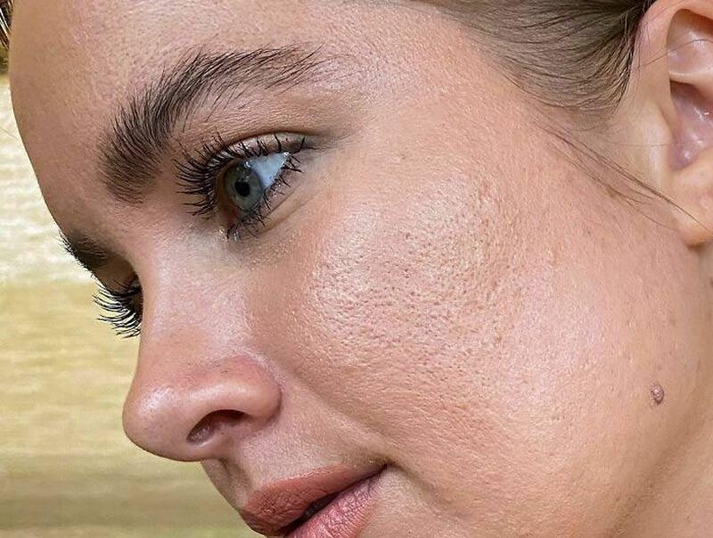 instagram-filterdrop-pele-reais-poros
