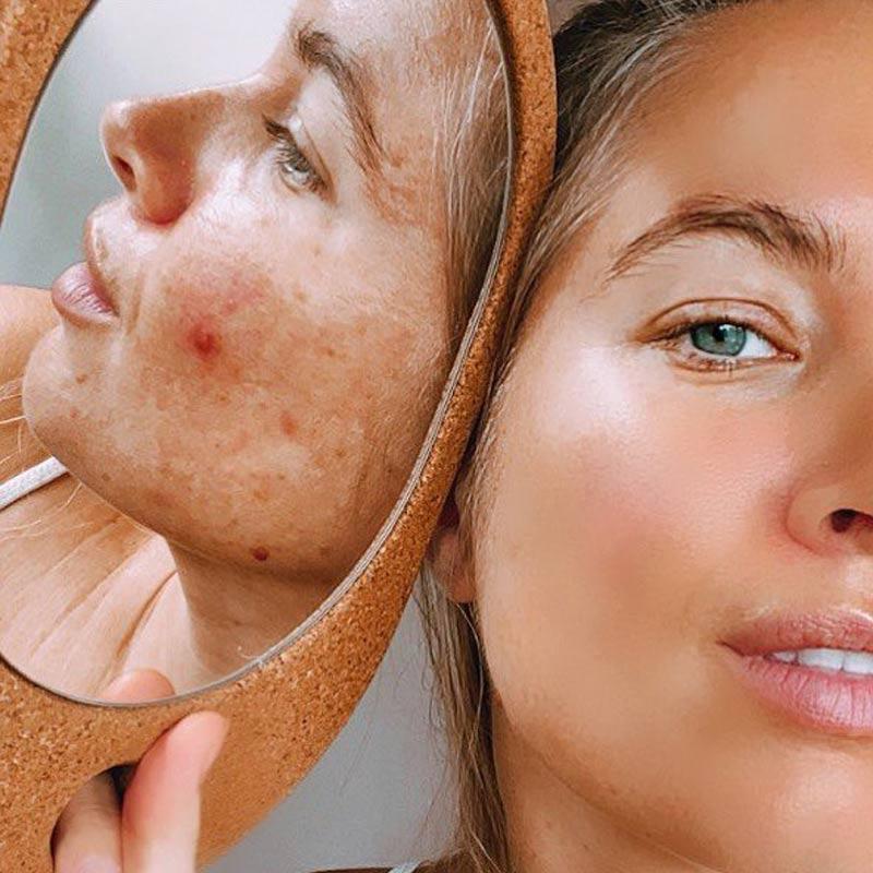 mulheres-filtros-peles-reais-instagram-campanhas