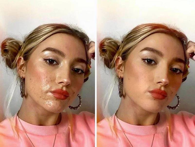 nofilter-instagram-peles-reais