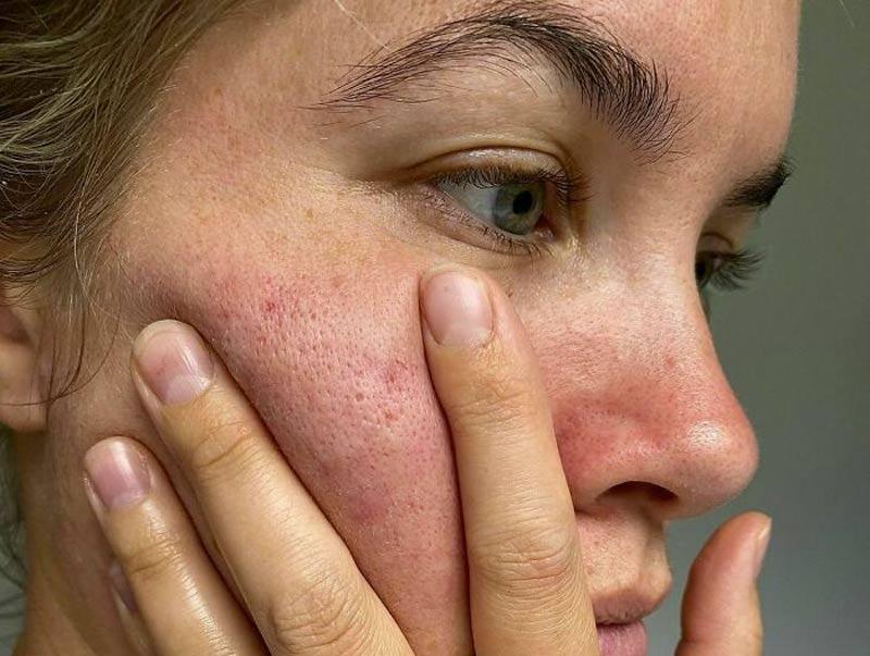 peles-reais-com-poros-campanha-instagram