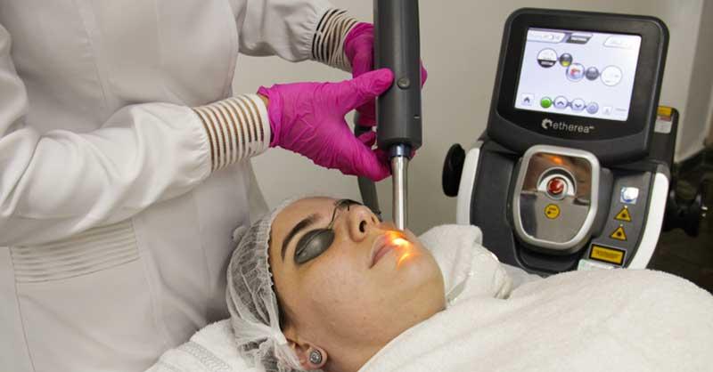 Laser resurfacing nos labios
