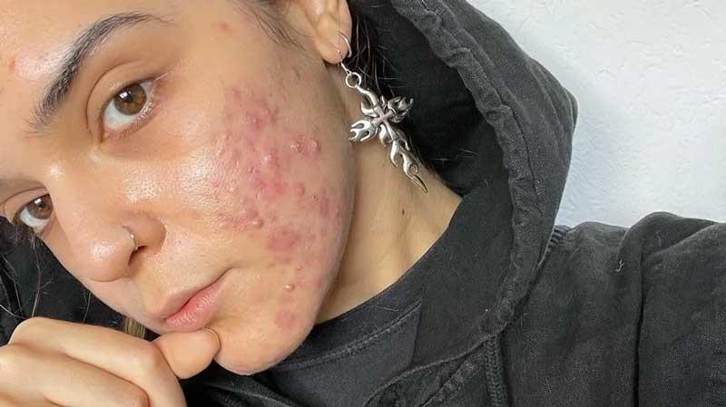 acne severa no rosto como tratar