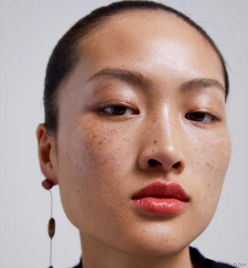 sardas no rosto de pessoas asiáticas