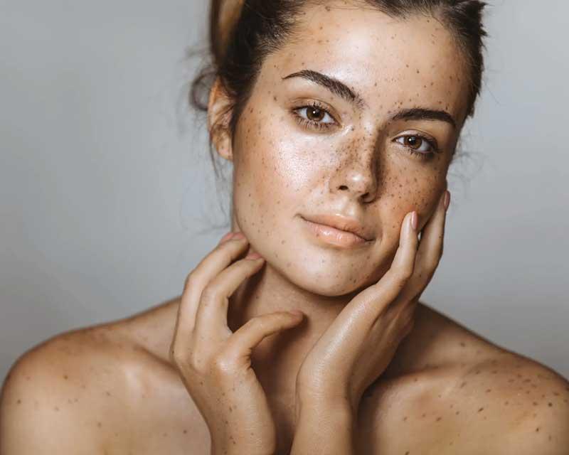 sardas no rosto e corpo